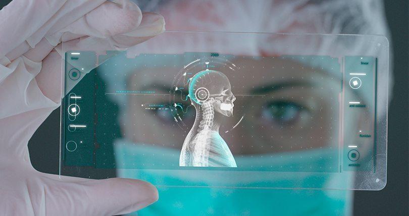 implantes bioelectrónicos