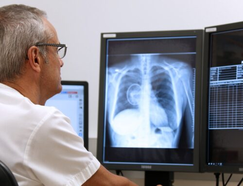 Pilot test begins to identify nodules indicating potential lung cancer in X-rays using deep learning technology